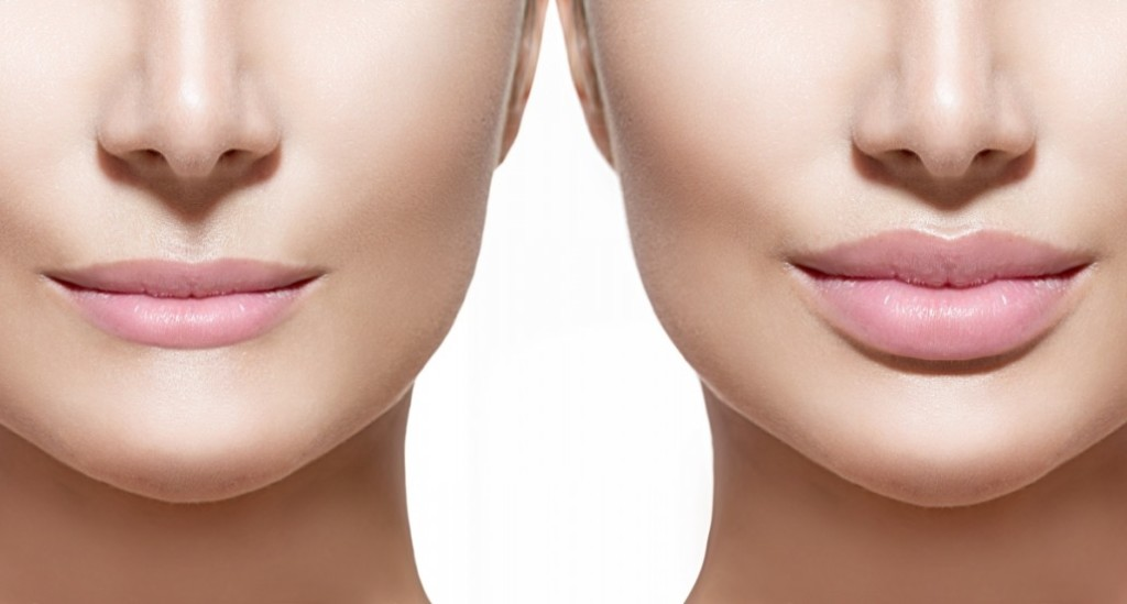 Optimized-lipfiller-1030x552